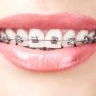 Sfaturi de igiena pentru cei care poarta aparat dentar