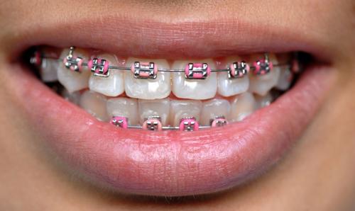 Ce trebuie sa stii inainte de a-ti pune un aparat dentar?