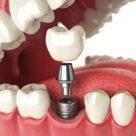 Ce este procedura de implant dentar?